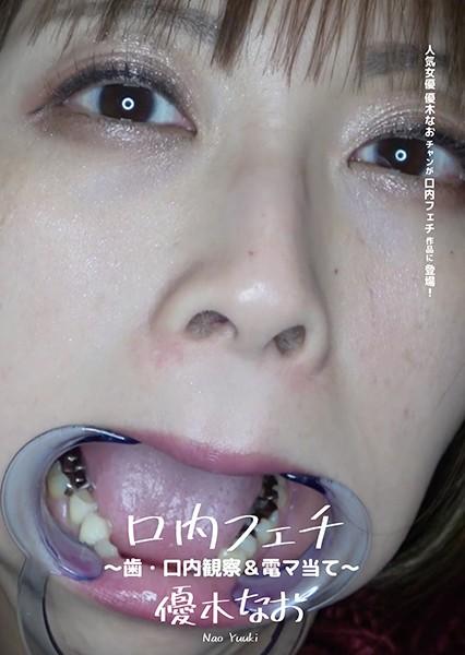 口内フェチ ~歯・口内観察&電マ当て~ 優木なお パッケージ画像