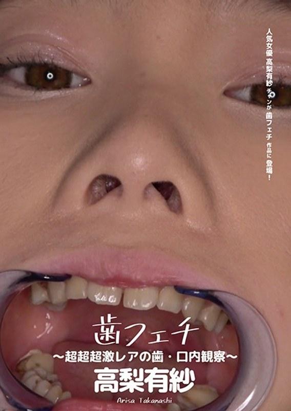 歯フェチ ~超超超激レアの歯・口内観察~ 高梨有紗 ジャケット画像