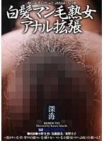 白髪マン毛熟女アナル拡張 ダウンロード