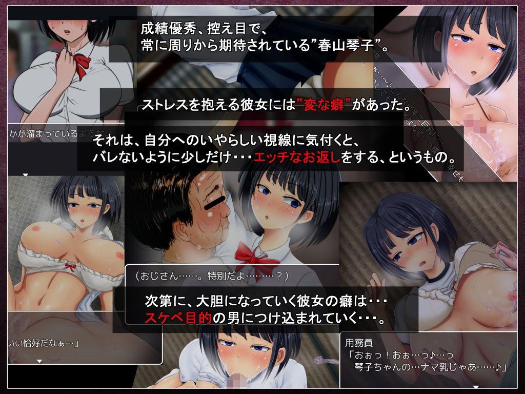 琴子ちゃんはちょっと変。のサンプル画像1