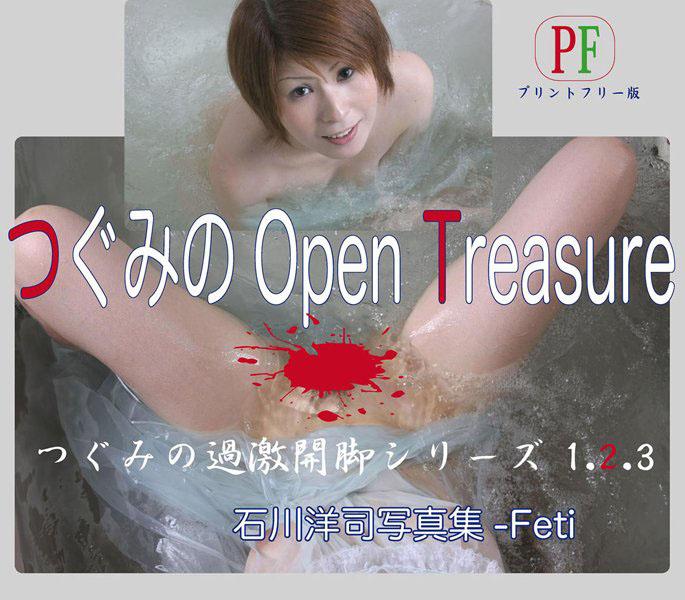 つぐみのOpen Treasure