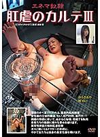 (180advsr00188)[ADVSR-188]肛虐のカルテIII ダウンロード