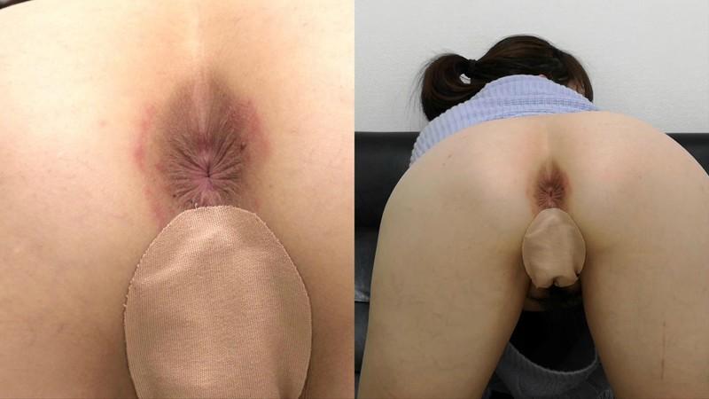 お尻の穴(アナル)を見てほしい 本宮充希のサンプル画像
