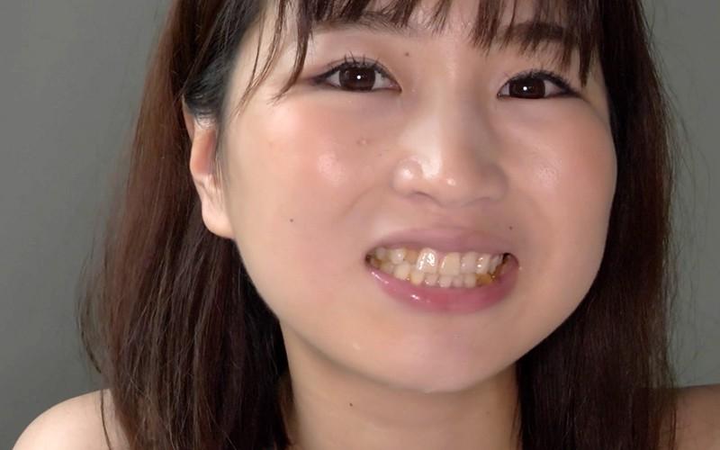 口内フェチ 〜銀歯・のどちんこ・咀嚼〜 桃井杏南