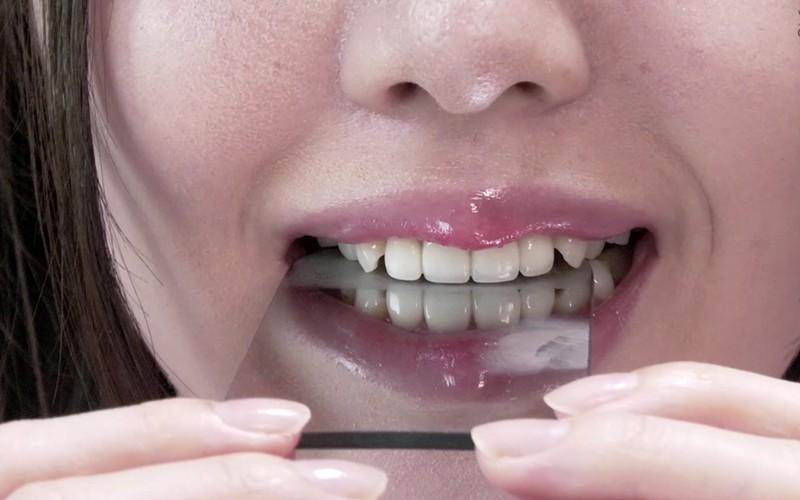 歯フェチ 〜じっくり歯観察〜 朝日しずく13