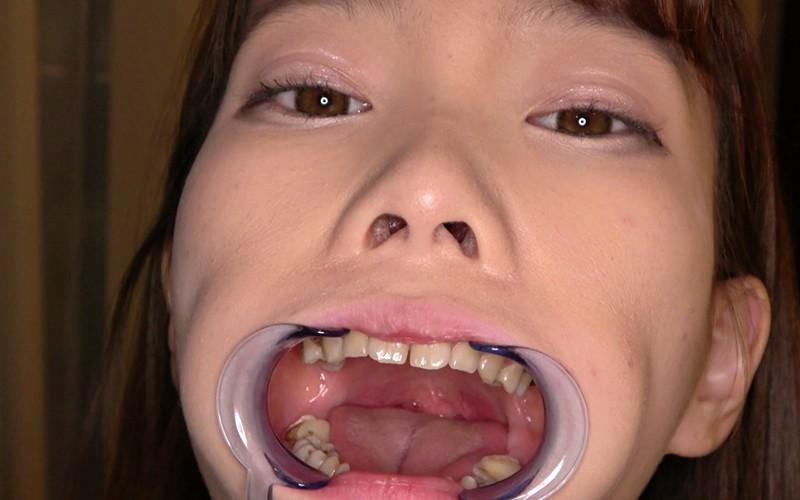 歯フェチ 〜超超超激レアの歯・口内観察〜 高梨有紗 画像10