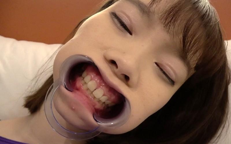 歯フェチ 〜超超超激レアの歯・口内観察〜 高梨有紗 画像14