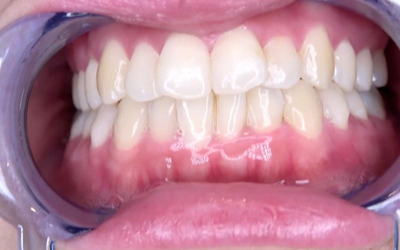 舌ベロフェチ 〜歯&口内観察&涎垂らし〜 星あめり 画像5