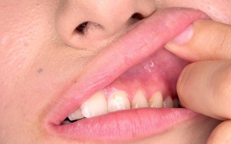 口内フェチ 〜歯・口内観察〜 霜月まどか 画像10