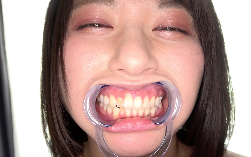 口内フェチ 〜歯・口内観察〜 霜月まどか 画像3