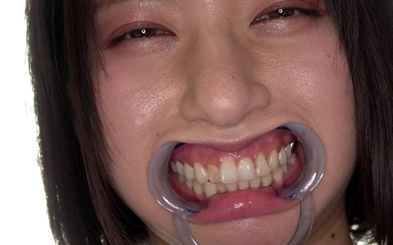 口内フェチ 〜歯・口内観察〜 霜月まどか 画像5