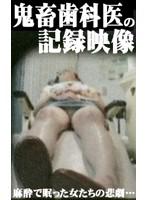 巨乳患者を狙う!鬼畜歯科医の盗撮記録 ダウンロード
