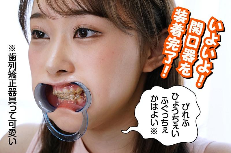 歯列矯正の女 長谷川古宵 キャプチャー画像 4枚目