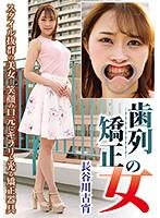 歯列矯正の女 長谷川古宵 ダウンロード