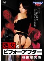 HRND-116 - 熟女のビフォーアフター 整形美容妻  - JAV目錄大全 javmenu.com
